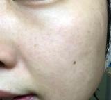 ビューケン潤生ウマプラセンタ美容液の画像(6枚目)