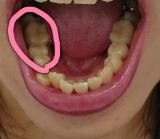 「【ビフォーアフター、かかった費用、日数】アラサーが奥歯の銀歯10本をセラミックに変えます③【右下の歯2本の入れ替え体験談】増税前に終わらせたいコト。」の画像(2枚目)