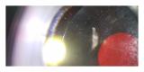 「ダニ目視キットでダニ生態調査モニターに参加しました!」の画像(6枚目)