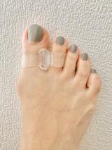 外反母趾の画像(4枚目)