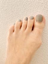外反母趾の画像(2枚目)