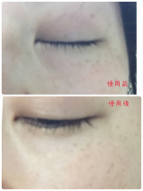 iN-BE+v CARBO-WRINKLE-SERUMの画像(8枚目)