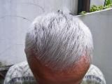 「『あなたの頭皮の状態に合った対処法を全てお伝えします』」の画像(1枚目)