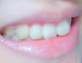 薬用ホワイトニング デンタウォッシュで歯が白くなった!の画像(3枚目)