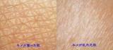「キメの整ったふっくら・もちもち透明肌♪」の画像(3枚目)