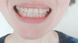 塩で歯磨き!ホワイトニング効果は??の画像(3枚目)