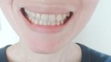 塩で歯磨き!ホワイトニング効果は??の画像(4枚目)