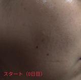 【モニター】高濃度ビタミンC natu-reC(ナチュールシー)②の画像(2枚目)