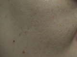 【モニター】高濃度ビタミンC natu-reC(ナチュールシー)③の画像(3枚目)