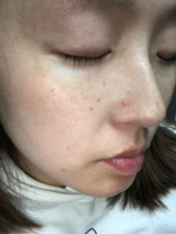 モッチスキン★フルーツシリーズの画像(3枚目)