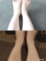 見た目は普通の靴下!医療用弾性ストッキングVENOFLEX ヴェノフレックス   毎日が小冒険 ♪ - 楽天ブログの画像(8枚目)