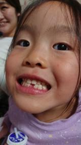 ついに歯が抜けました。の画像(1枚目)