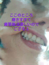 アラフォー歯のホワイトニングに悩むの巻(知覚過敏カバー)の画像(1枚目)
