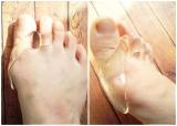 コロナ禍の運動不足 歩くと痛い外反母趾。の画像(6枚目)