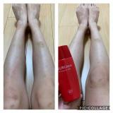 口コミ記事「NURUsto(ヌルスト)脚用CCクリームを使用しての感想②」の画像