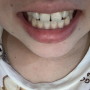 「ビフォーアフターが楽しみ!」【薬用美白】歯磨きジェル☆ビフォーアフター投稿モニター20名様 募集!の投稿画像