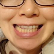 「お願いします」【薬用美白】歯磨きジェル☆ビフォーアフター投稿モニター20名様 募集!の投稿画像