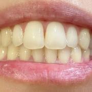 「歯」【薬用美白】歯磨きジェル☆ビフォーアフター投稿モニター20名様 募集!の投稿画像