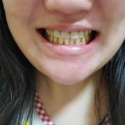 「もっとキレイな」【薬用美白】歯磨きジェル☆ビフォーアフター投稿モニター20名様 募集!の投稿画像