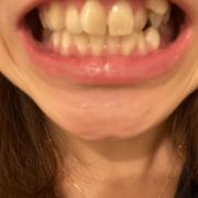 「白くなりたい!」【薬用美白】歯磨きジェル☆ビフォーアフター投稿モニター20名様 募集!の投稿画像