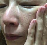 「粉ふき肌改善(^^)v」の画像(5枚目)