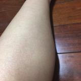 「粉ふき肌改善(^^)v」の画像(7枚目)