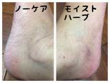 「粉ふき肌改善(^^)v」の画像(9枚目)