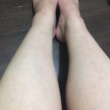 「粉ふき肌改善(^^)v」の画像(10枚目)