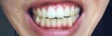 「歯」の画像(1枚目)