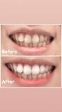 「歯の黄ばみの悩みから解放されました!」の画像(3枚目)