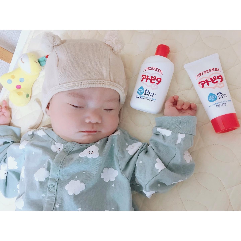口コミ投稿:𓂃#babycosme𓂃アトピタの保湿ミルキィローション&クリーム🥛赤ちゃんのお肌のくり返す…