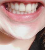 歯のbefore &after