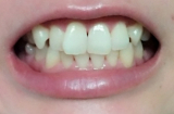 美白歯磨きジェルを一か月使用してみた結果