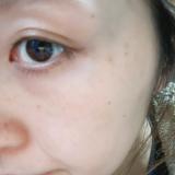 目の周りのシミそばかすと小鼻の黒ずみがきになります。