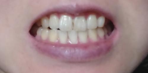 歯の美白ケア