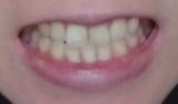 「歯の美白ケア」の画像(2枚目)