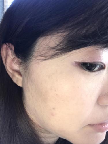 顔 の シミ を 消 したい 顔のシミを消す方法 自力で消したい人におすすめのケア法と食べ物