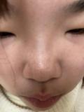 小鼻が汚い…。