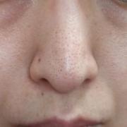 「鼻の毛穴の黒ずみ」★画像投稿★お顔の気になる「シミ」「黒ずみ」に!ピンポイント美白パックを使って景品をゲット~!の投稿画像