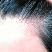 「生え際の白髪」★新商品モニター★白髪・薄毛を隠せるヘアファンデーション使って画像投稿~の投稿画像