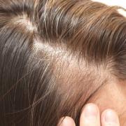 「薄毛や白髪」★新商品モニター★白髪・薄毛を隠せるヘアファンデーション使って画像投稿~の投稿画像