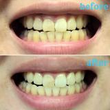 音波式電動歯ブラシ『ブラックisホワイト』と専用の『粉はみがき』を使うと歯の黄ばみが取れる?の画像(6枚目)