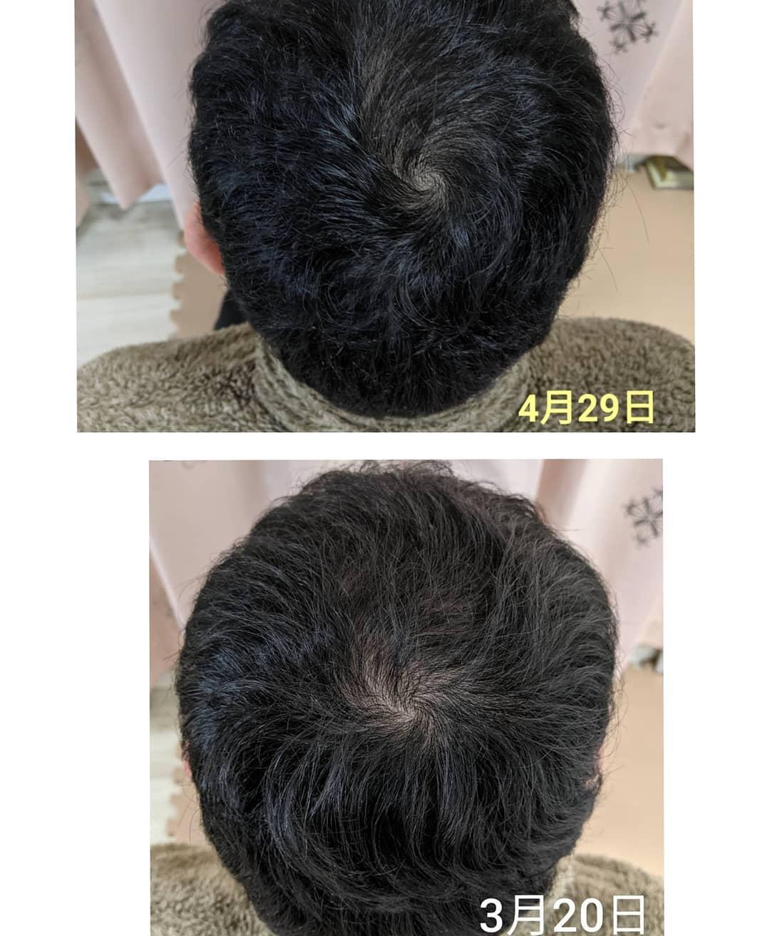 口コミ投稿:旦那さん、後頭部の育毛始めて3ヶ月経ちました✨1本1本の毛が濃くなり毛根が強くなっ…