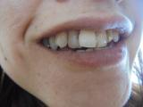 「白い歯」の画像(1枚目)