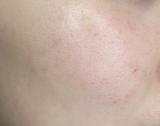口コミ記事「だいぶ肌がきれいになりました」の画像