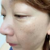 口コミ記事「シュワトレーゼ薬用リンクルホワイトゲルを三ヶ月使用してみて」の画像
